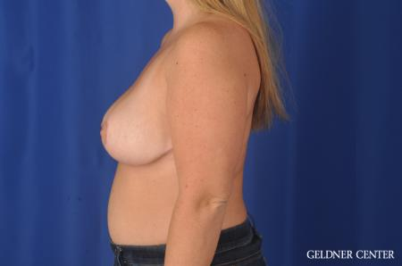 Chicago Breast Reduction 11855 -  After Image 3