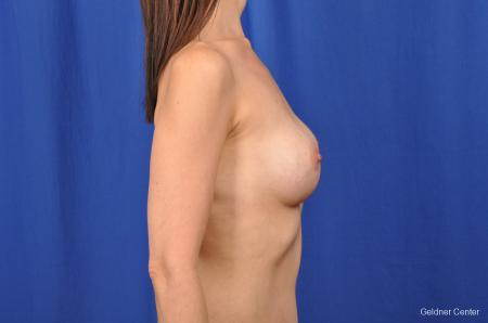 Chicago Breast Augmentation 2376 -  After Image 2
