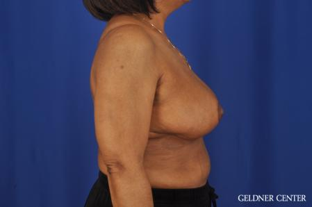 Breast Reduction: Patient 35 - After Image 3
