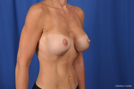 Breast Lift: Patient 45 - After Image 2