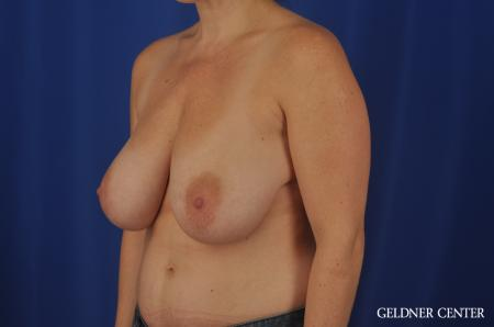 Breast Reduction Hinsdale, 4287 - Before Image 4
