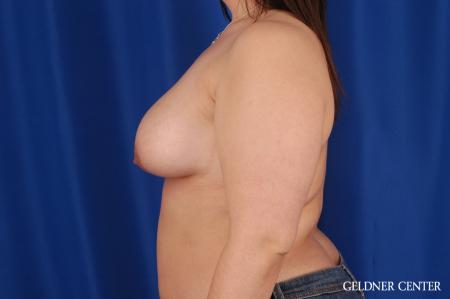 Breast Lift Hinsdale, Chicago 2615 - Before Image 4