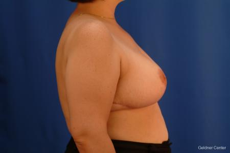 Breast Reduction Streeterville, Chicago 2522 -  After Image 2