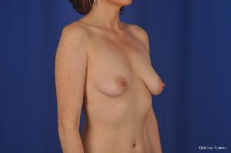 Chicago Complex Breast Augmentation 2400 - Before Image 2