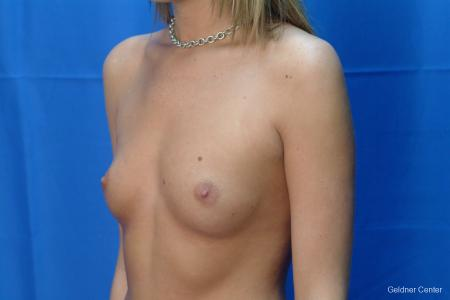 Chicago Breast Augmentation 2431 - Before and After Image 4