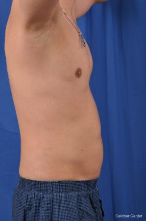 Liposuction For Men: Patient 5 - After Image 3