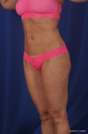 Vaser lipo patient 2069 before and after photos -  After Image 4