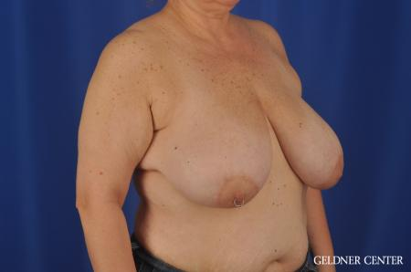 Breast Reduction Lake Shore Dr, Chicago 3223 - Before Image 3