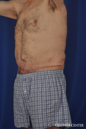 Liposuction For Men: Patient 11 - After Image 5