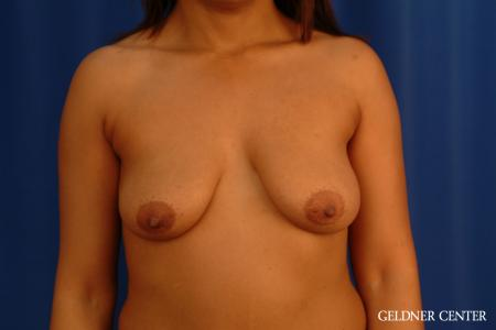 Breast Lift: Patient 54 - Before Image 1