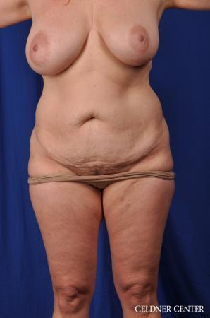 Lipoabdominoplasty: Patient 6 - Before Image 1