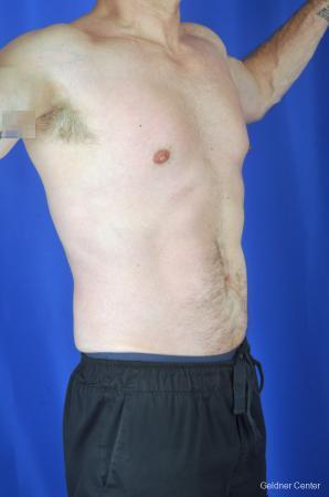 Liposuction For Men: Patient 9 - After Image 2
