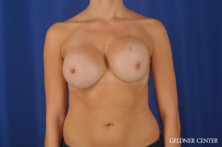 Chicago Breast Augmentation 11868 - Before Image 1