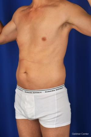 Liposuction For Men: Patient 2 - Before and After Image 5