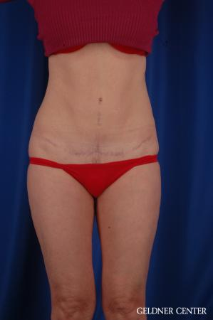 Tummy Tuck: Patient 36 - After Image 1