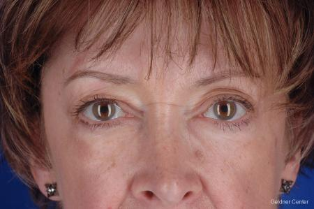 Eyelid Lift Streeterville, Chicago 2396 - Before Image 1