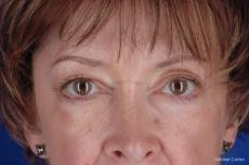 Eyelid Lift Streeterville, Chicago 2396 - Before Image