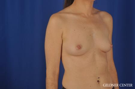 Breast Augmentation Hinsdale, Chicago 5579 - Before Image 2