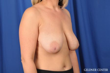 Breast Lift: Patient 40 - Before Image 3