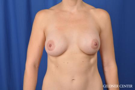 Breast Augmentation: Patient 170 - After Image 1