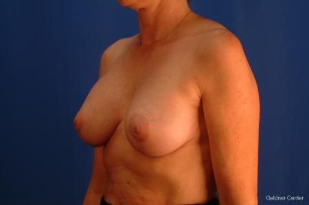 Breast Augmentation Streeterville, Chicago 2508 -  After Image 4