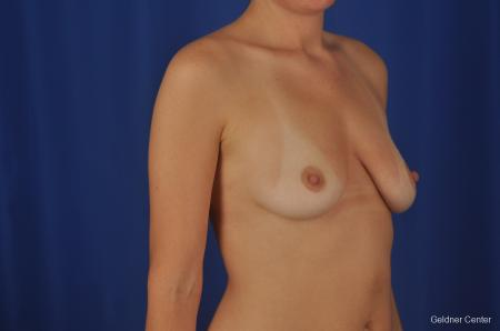 Chicago Breast Augmentation 2374 - Before Image 3