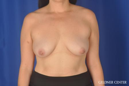 Chicago Breast Lift 11857 - Before Image 1