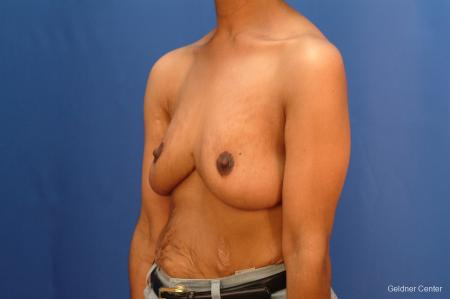 Breast Reduction Hinsdale 2440 -  After Image 4