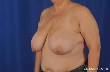Breast Reduction Lake Shore Dr, Chicago 3223 - Before and After Image 4