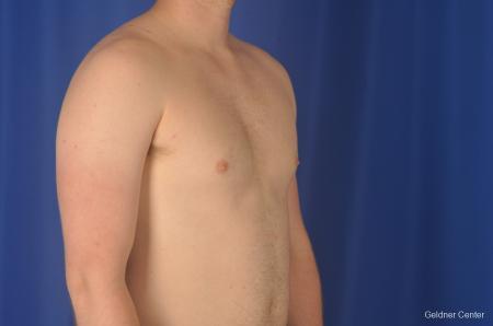 Gynecomastia: Patient 10 - Before Image 2