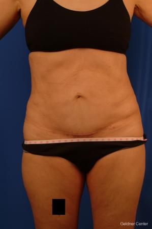 Vaser lipo patient 2536 before and after photos - After Image