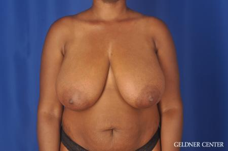 Breast Reduction: Patient 24 - Before Image 1