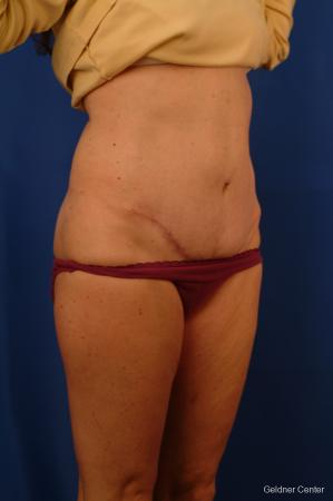 Liposuction: Patient 11 - After Image 2