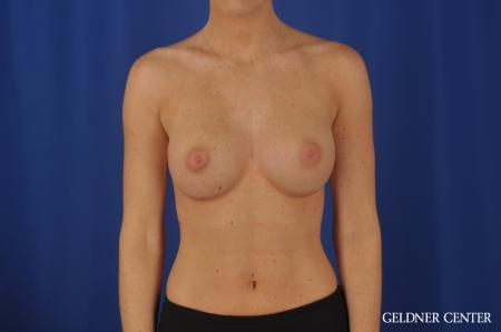 Chicago Breast Augmentation 4292 -  After 1