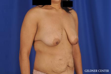 Breast Lift: Patient 49 - Before Image 2