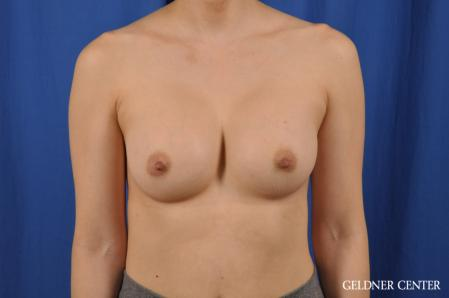 Breast Augmentation: Patient 176 - After Image 1