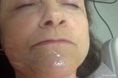 mole laser removal - After Image
