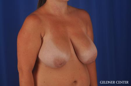 Chicago Breast Reduction 11855 - Before Image 2