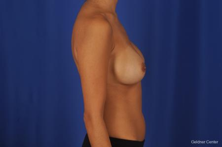 Breast Augmentation Streeterville, Chicago 2298 - Before Image 2