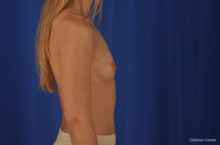 Breast Augmentation: Patient 149 - Before Image 3