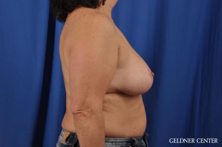 Breast Reduction: Patient 31 - After Image 3
