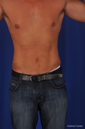Liposuction For Men: Patient 1 - After Image 1