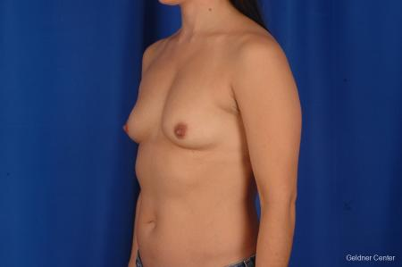 Breast Augmentation Hinsdale, Chicago 2299 - Before and After Image 4