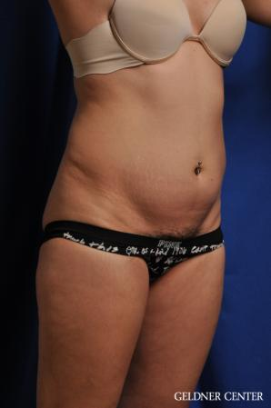 Tummy Tuck: Patient 32 - Before Image 2