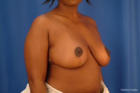 Chicago Breast Reduction 2441 -  After Image 3