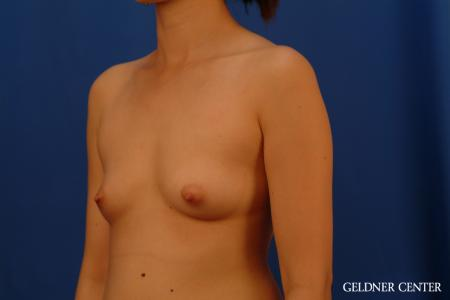Breast Augmentation: Patient 177 - Before and After Image 4