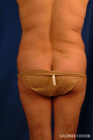 Vaser lipo patient 2629 before and after photos - Before Image 4