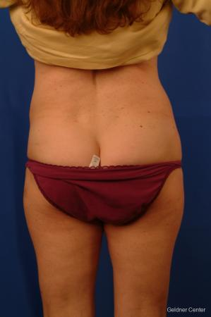 Liposuction: Patient 11 - After Image 4