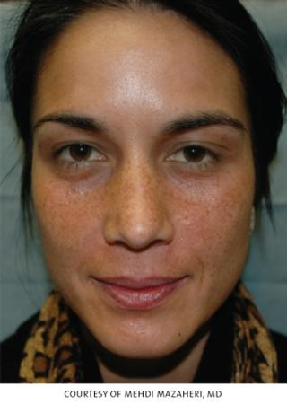 Chicago VI Peel chemical peel patient 2314 before and after photos - Before Image