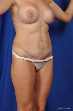 Tummy Tuck: Patient 5 - After Image 2
